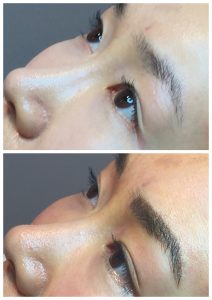 permanent makeup before and after Sydney