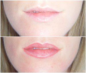 lips tattooing Bondi Junction Sydney