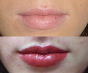 Lip-Tint Tattoo before and after