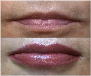 Lips Tattoo before and after Sydney