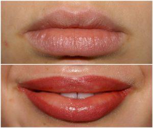 Lips Cosmetic Tattoo Sydney